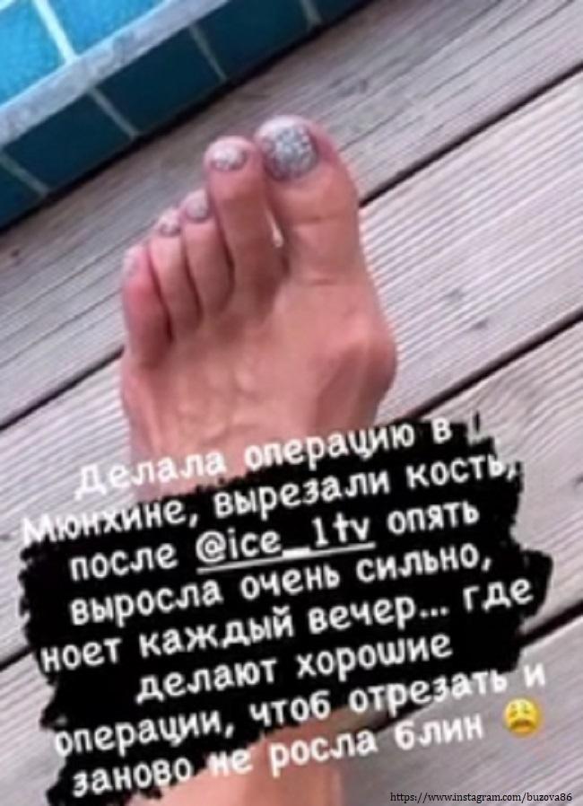 Ольга Бузова показала свою ногу