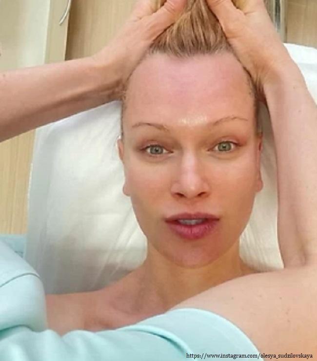 Олеся Судзиловская без макияжа