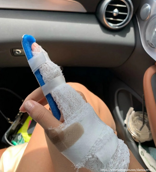Дарина Эрвин показала загипсованый палец