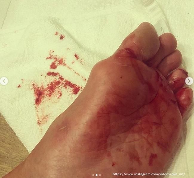 Анастасия Волочкова сильно травмировала ногу