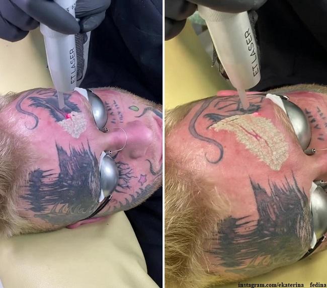 Денис Шальных удаляет татуировки лазером