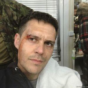 Подробнее: Милош Бикович получил «в глаз» на съемках боевика