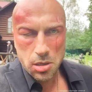 Подробнее: Лицо Дмитрия Нагиева заплыло от побоев