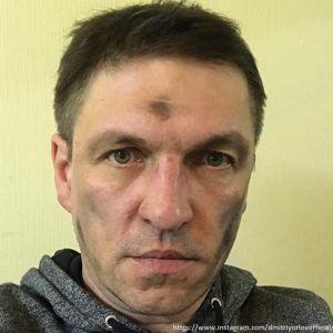 Подробнее: Дмитрий Орлов прокомментировал состояние своего здоровья