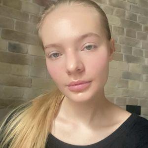 Подробнее: Елизавета Пескова рассказала о желании избавиться от большого носа