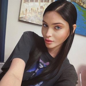 Подробнее: Алена Шишкова едва не облысела